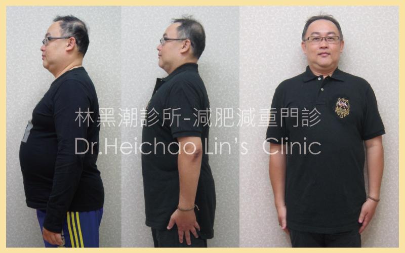 【見證】減肥沒師父,找對醫師&方法,堅持到底