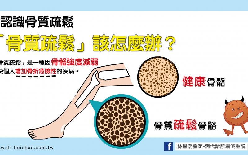 認識骨質疏鬆/文:王世杰醫師