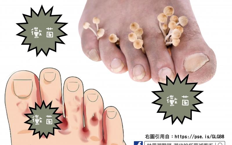 香港腳與灰指甲/文:王世杰醫師