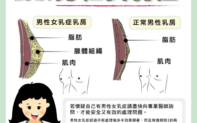 淺談男性女乳症/文:陳韋螢醫師