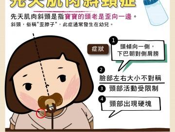 先天肌肉斜頸症/文:許錦銓醫師