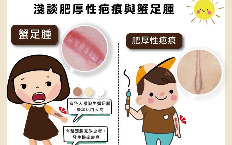 受傷有疤怎麼辦?淺談肥厚性疤痕與蟹足腫/文:陳韋螢醫師