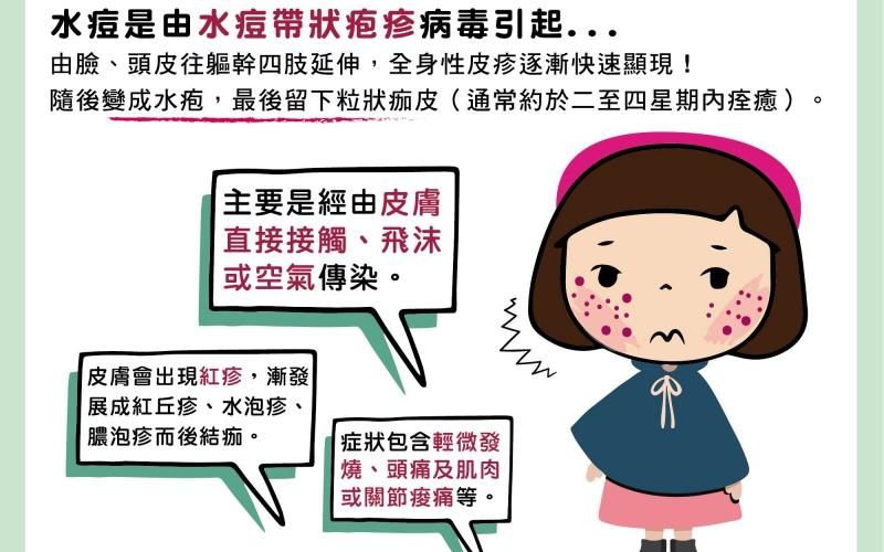 水痘/文:黃瀚霆醫師