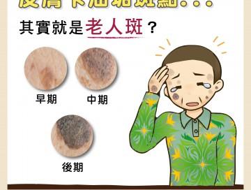 皮膚卡油垢斑點其實就是老人斑/文:洪啟偉醫師