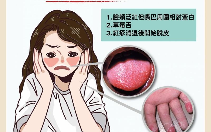 猩紅熱簡介/文:黃瀚霆醫師