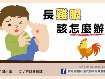 雞眼/文:許錦銓醫師