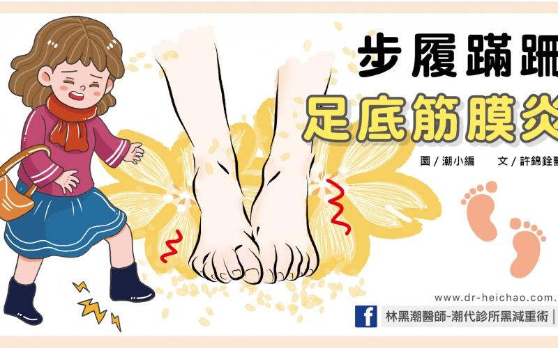 步履蹣跚足底筋膜炎/文:許錦銓醫師