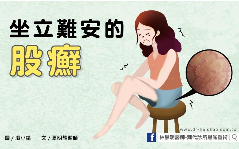 坐立難安的股癬/文:夏明輝醫師