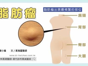 脂肪瘤/文:黃瀚霆醫師